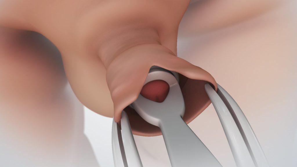 Körülmetélés műtét